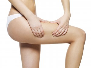 cellulite jambe